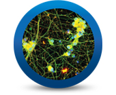 Trending: Now Available - iCell Motor Neurons