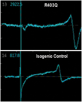 Trending: Now Available! MyCell Cardiomyocytes HCM (R403Q and Isogenic Control)
